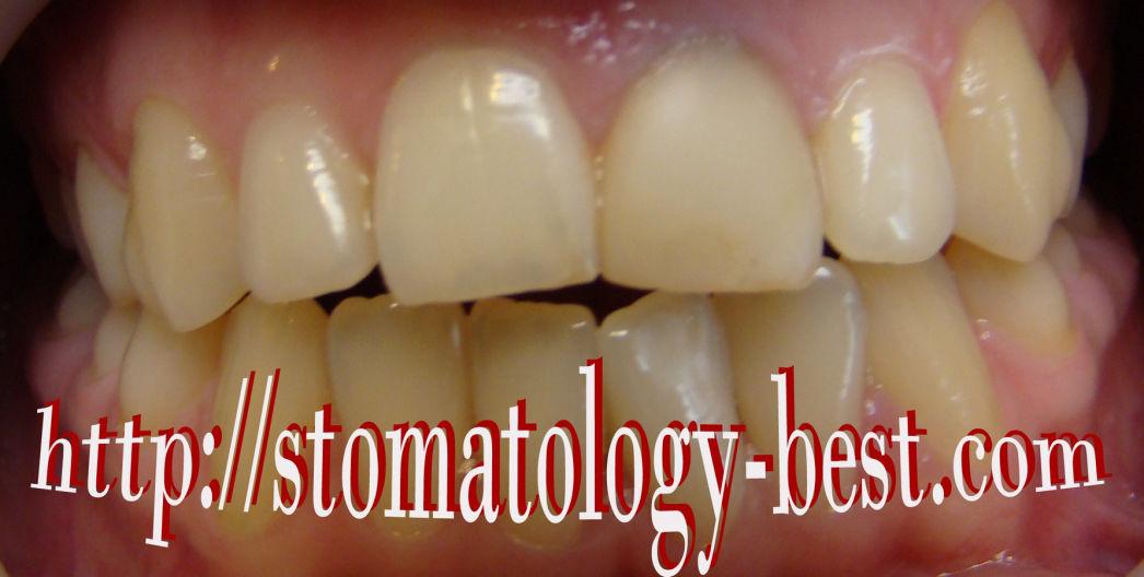 исправление прикуса, стоматология