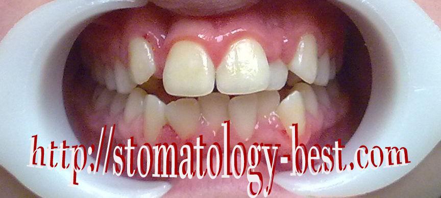 выравнивание зубов, верхняя челюсть