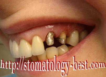 отбеливание зубов зум цена