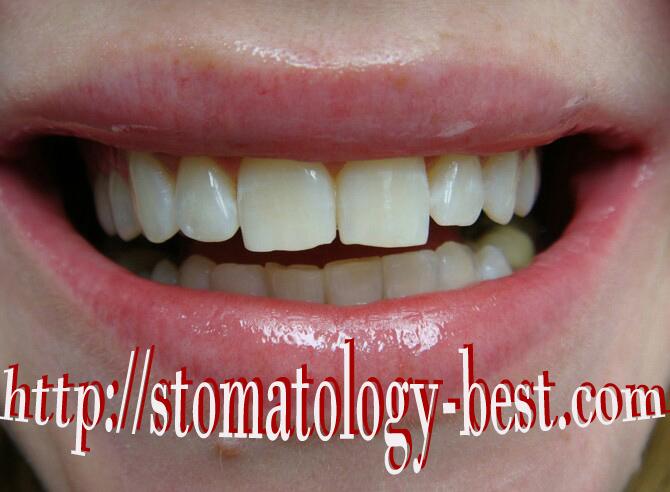 зум 4 отбеливание зубов курск цена