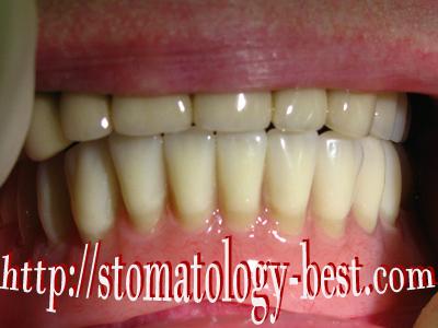 отбеливание зубов зум 4 цена