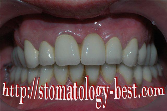 зум отбеливание зубов показания и противопоказания