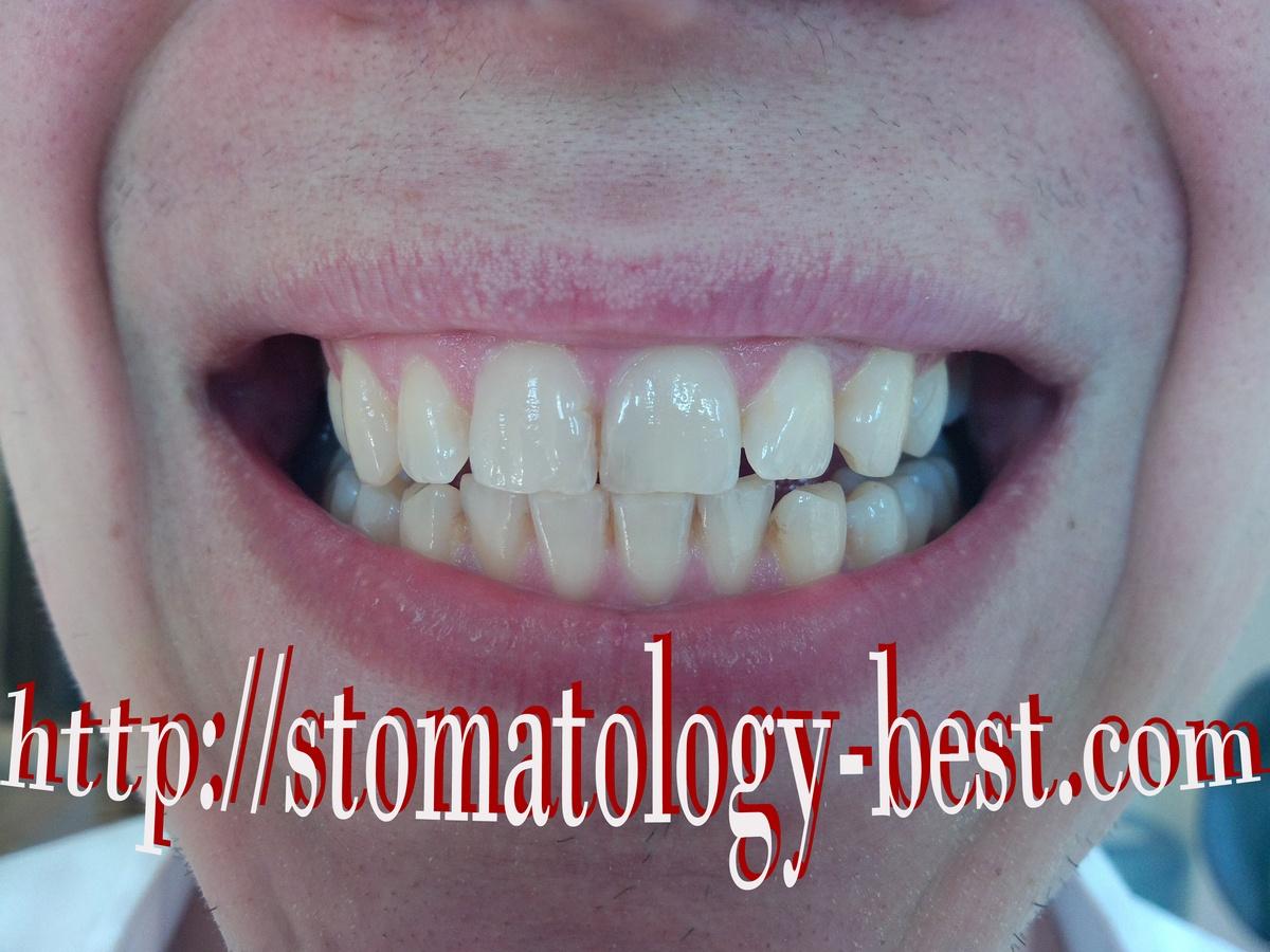 зум 4 отбеливание зубов акция