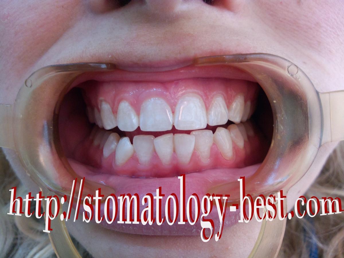отбеливание зубов зум акция